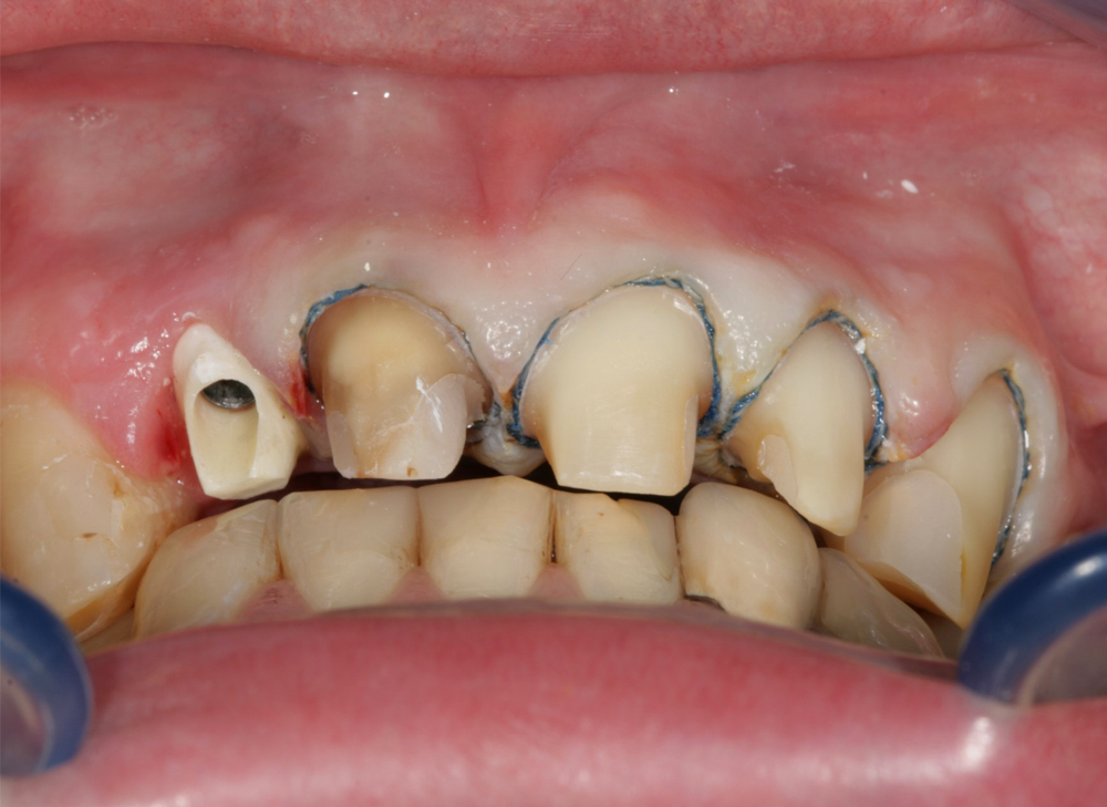 LTS-BASE-Front incisor-Initial situation